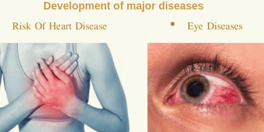 Development of major diseases