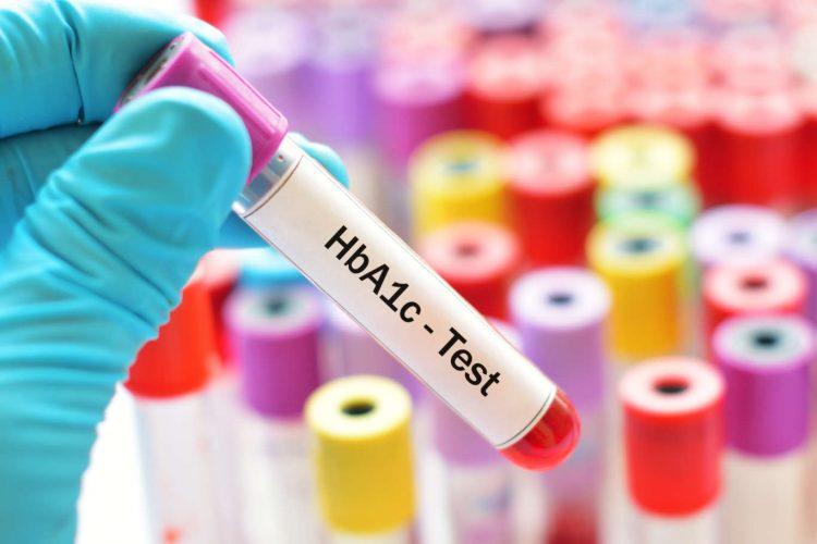 HbA1c- Test
